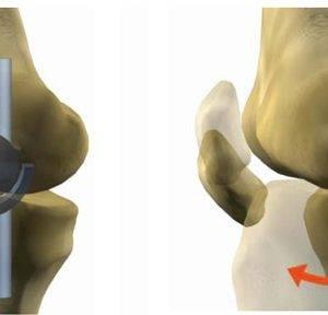 bms-knee-joint