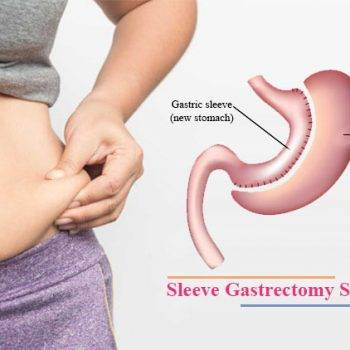 sleeve-gastrectomy-surgery-in-delhi-cusp-surgeons