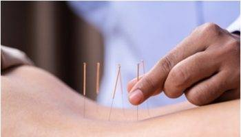 Acupuncture and acupressure